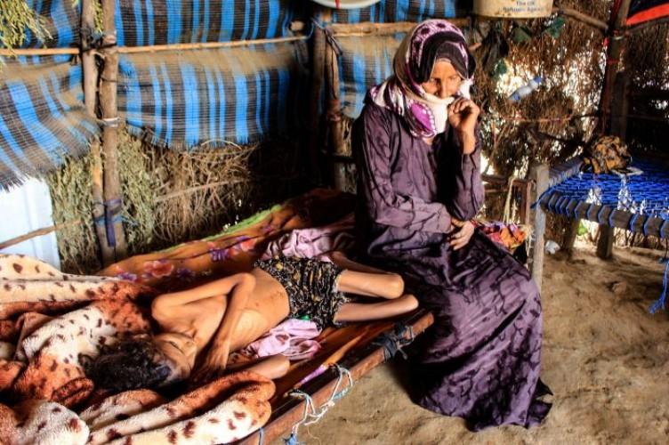 400 Ribu Anak Yaman Terancam Meninggal Kelaparan