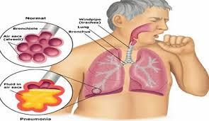 Lamtim Targetkan dapat Menemukan dan Mengobati 2.818 Penderita TBC