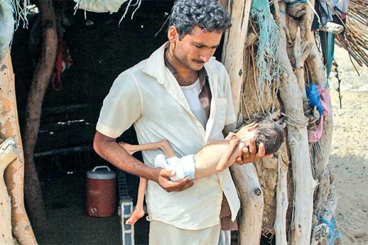 Ancaman Kelaparan di Tengah Pandemi Melanda Anak di Yaman