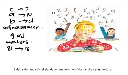 Kenali Gejala Disleksia pada Anak