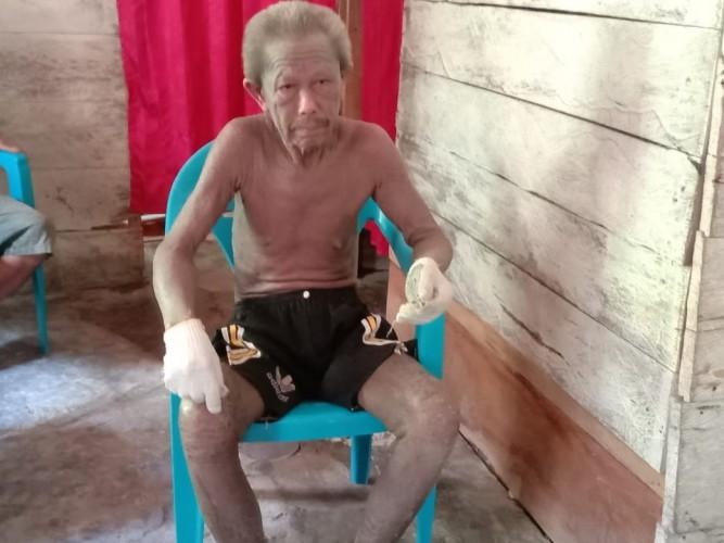 Basori, Tukang Bangunan yang Ambruk Dijalari Penyakit Kulit Butuh Bantuan Dermawan