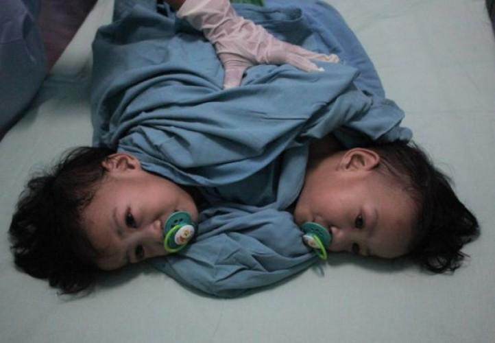 Bayi Kembar Nenek