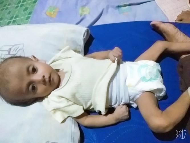 Bayi Mengidap Penyakit Leukemia Butuh Uluran Tangan