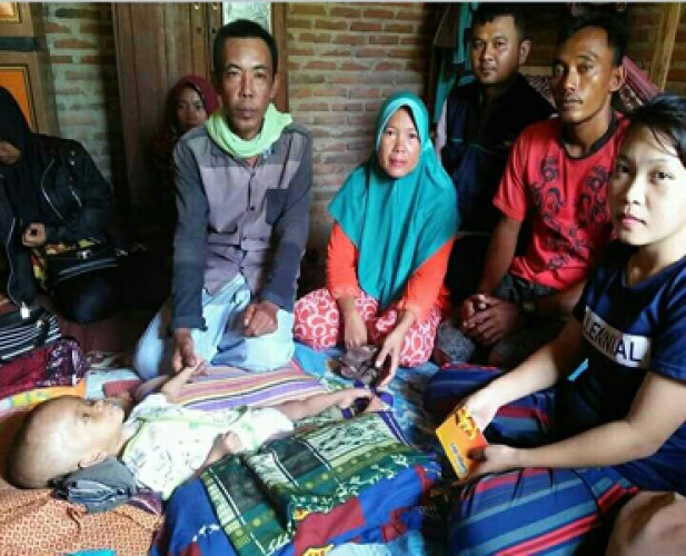 Bocah Penderita Hidrocefalus di Bengkunat Butuh Bantuan