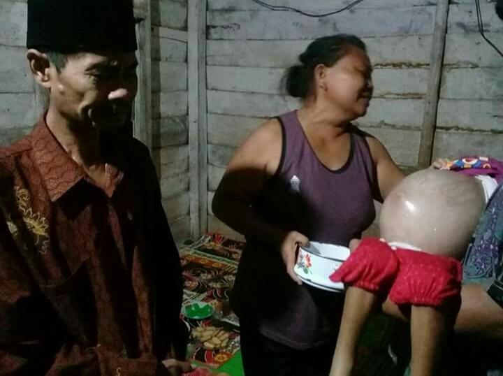 Hendak Operasi di Jakarta, Bocah Pengidap Tumor Ganas Asal Tubaba Butuh Bantuan