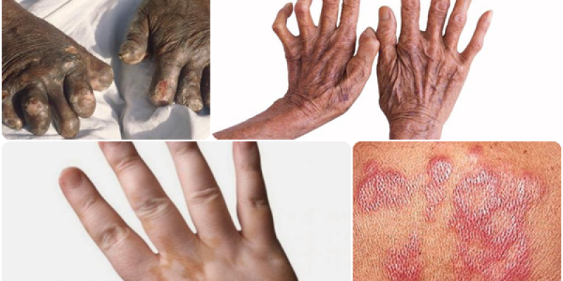 Hingga Juli 2018, Tercatat 10 Warga Lamtim Terjangkit Penyakit Kusta