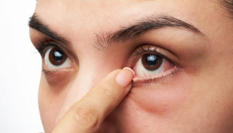 Jaga Kesehatan Mata Selama Masa Pandemi