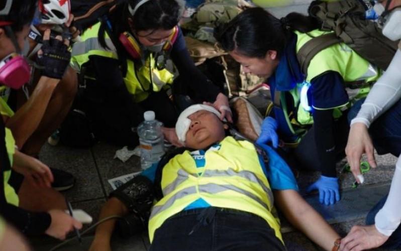 Jurnalis Indonesia Tertembak Peluru Karet saat Liput Demo Hong Kong
