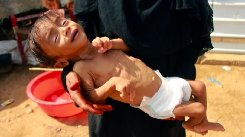 Kelaparan Ancam Warga Yaman di Tengah Konflik Kekuasaan