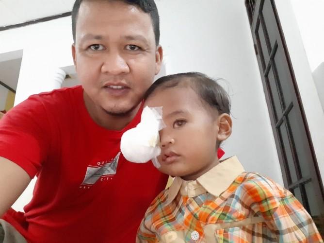 Menderita Kanker Bola Mata, Balita Ini Butuh Bantuan Para Dermawan