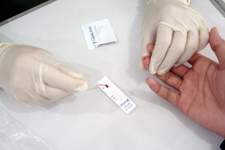 Paslon di Lamsel Setuju Saksi Dirapid Test