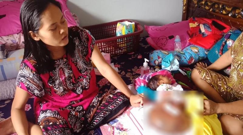 Pemkab Pesawaran Janji Tanggung Pengobatan Bayi Yasmin Penderita Tumor Teratoma