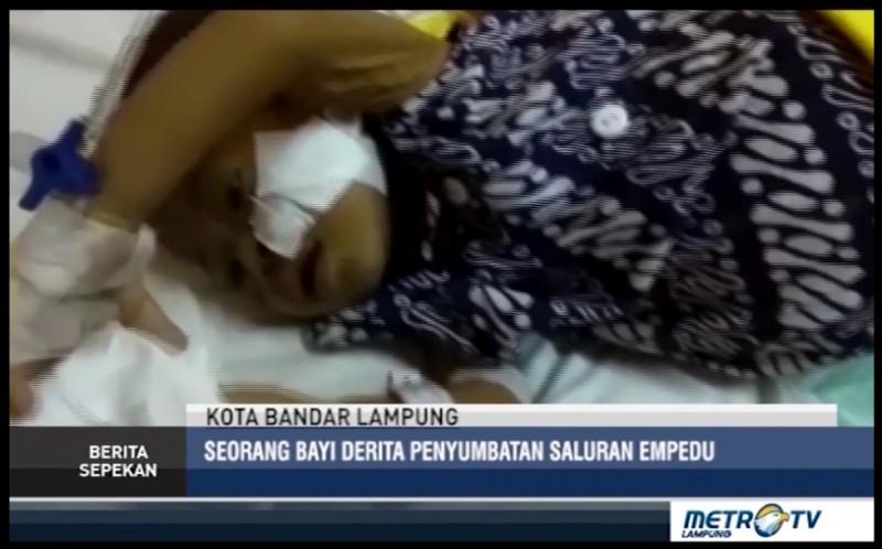 Pemkot Bandar Lampung Fasilitasi Biaya Pengobatan Bayi Penderita Penyumbatan Saluran Empedu