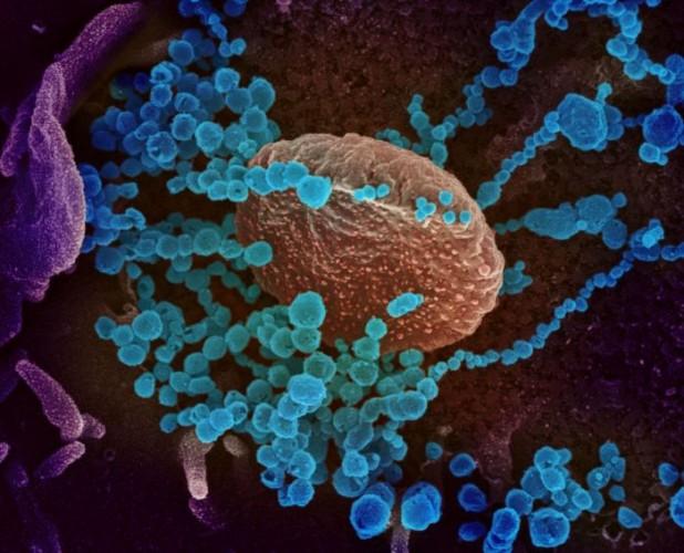 Peneliti Tiongkok Temukan Virus Flu Berpotensi Mewabah