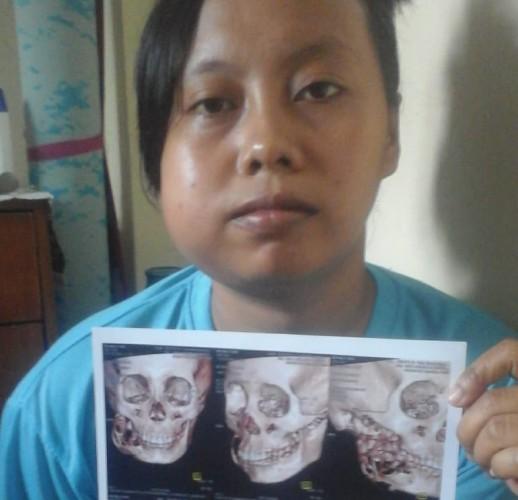 Sri Mulyani, Penderita Tumor Pipi di Padangratu Butuh Bantuan Dermawan